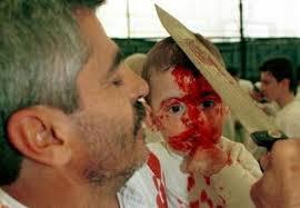 child cruelty 6